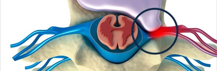 ernia discale comprimendo radice nervosa