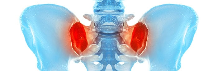 dolore sacroiliaco bilaterale