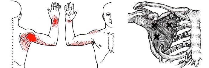 trigger point muscolo sottoscapolare